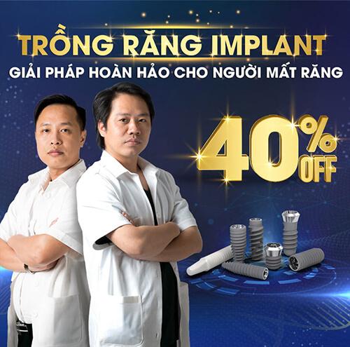 banner-trong-rang-implant-mobile-01