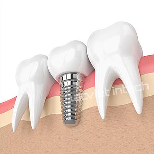 mo-phong-rang-cay-ghep-implant