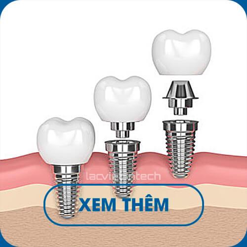 cay-ghep-implant-3-rang-mo-phong